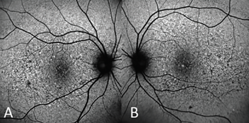<p>Figure 3. Autofluorescence images (right eye, A; left eye, B) show area of increased autofluorescence surrounding the macula and optic disc.</p>